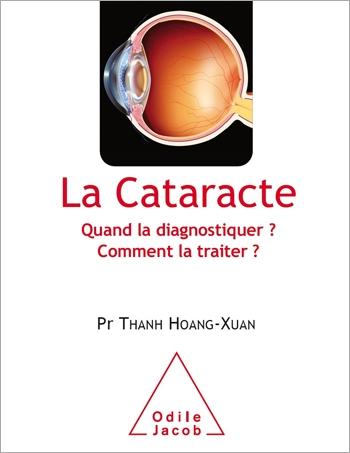 Cataracte (La) - Quand la diagnostiquer? Comment la traiter?